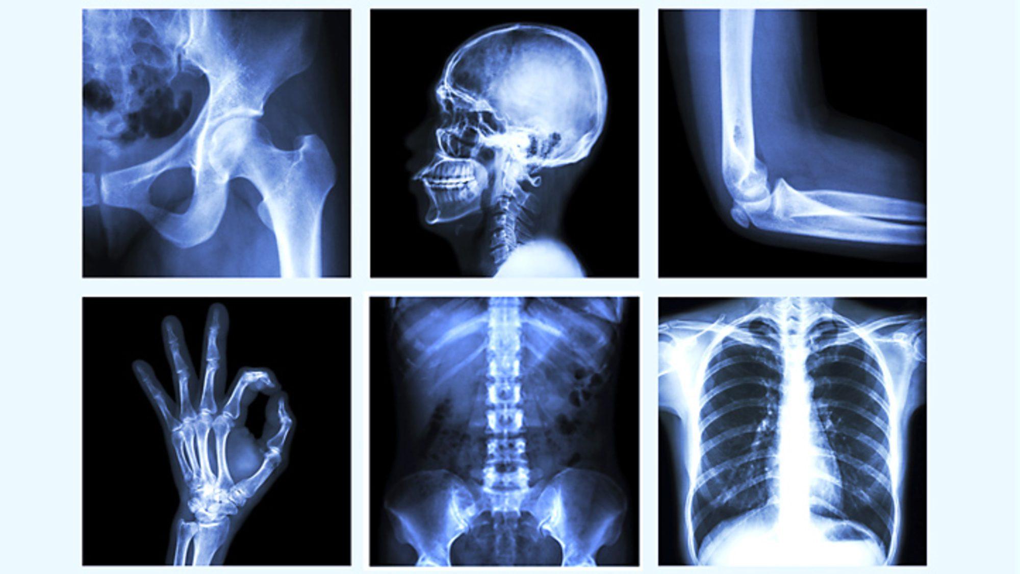 Ászanasor csontritkulásra